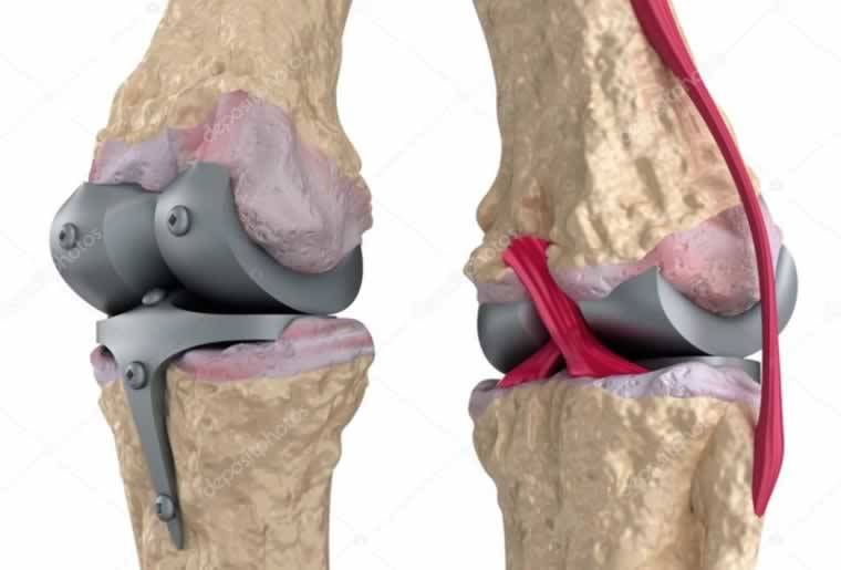 alaşım örnekleri kobalt alaşım protez