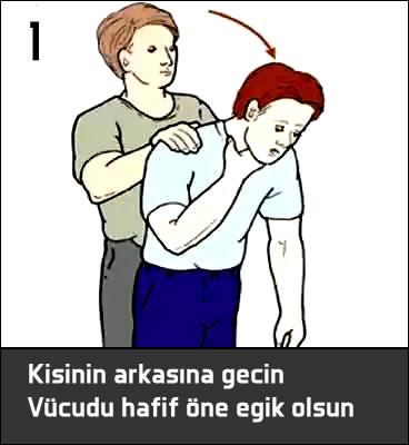 Heimlich manevrası nasıl yapılır ?