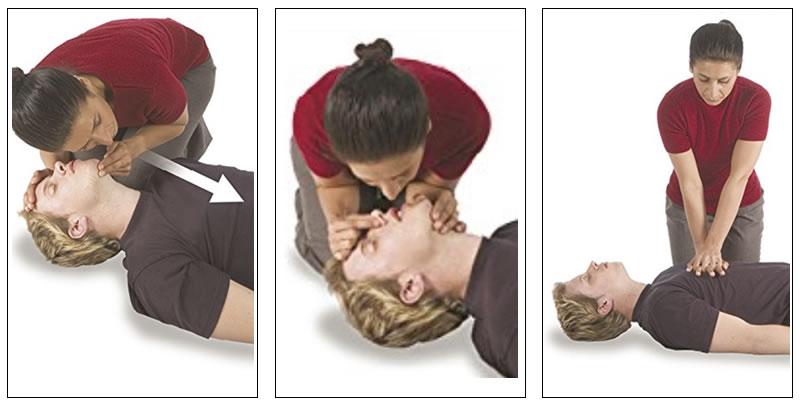 elektrik kazasında ilk yardım suni tenefüs kalp masajı